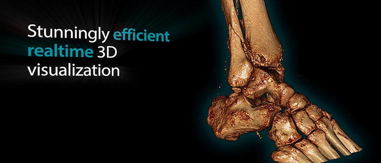 Vesalius3D - 3D DICOM Viewer for Windows | High Quality 3D Medical